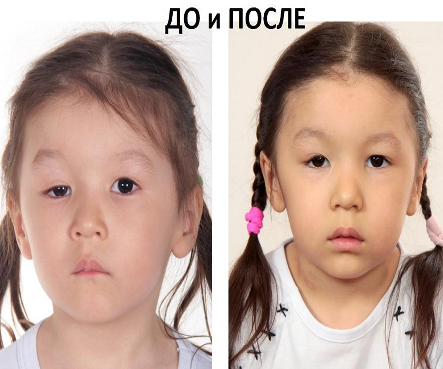 Птоз верхнего века до и после операции