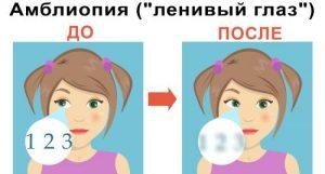 Амблиопия ленивый глаз у детей
