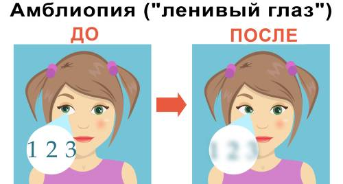 Амблиопия ленивый глаз при косоглазии у детей