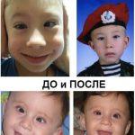 фото До и после операция на косоглазие у детей