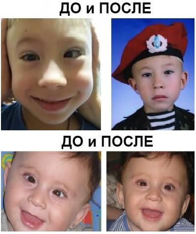 Лечение косоглазия удетей операция до и после фото