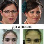 Фото До и после операции на косоглазие у взрослых