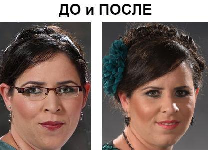 Косоглазие у взрослых фото до и после операции