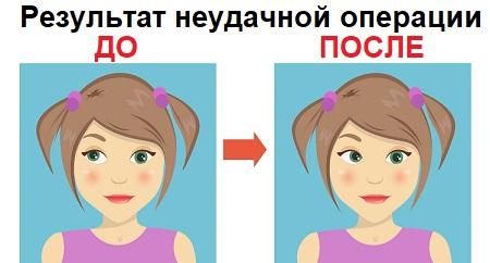 Неудачная операция на косоглазие результат до и после