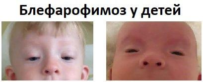 Блефарофимоз у детей. Лечение
