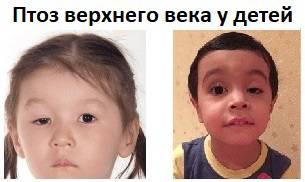 Птоз верхнего века глаза у детей