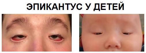 Эпикантус у детей лечение