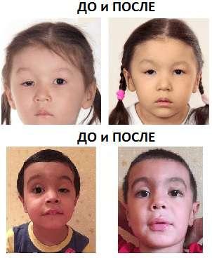 Птоз века до и после операции фото