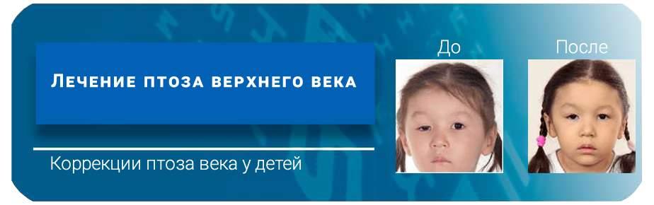 Лечение птоза верхнего века у детей