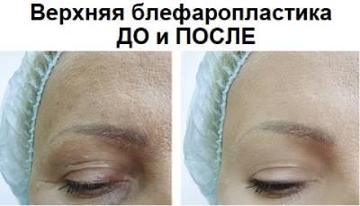 Верхняя блефаропластика до и после