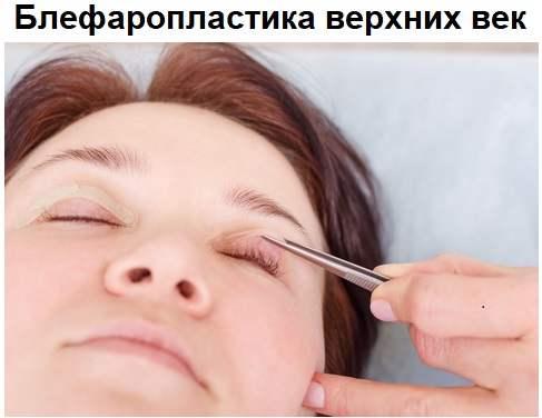 Верхняя блефаропластика
