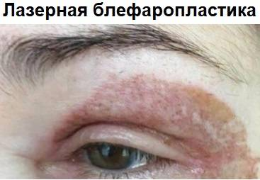 Безоперационная лазерная блефаропластика последствия