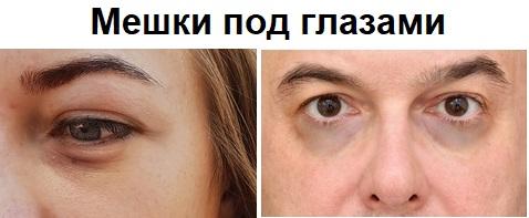мешки под глазами с возрастом