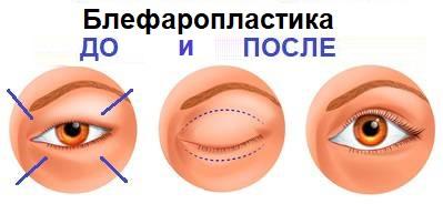 Блефаропластика верхних век до и после